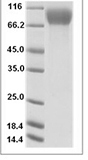 Mouse CSF1R recombinant protein (C-His)