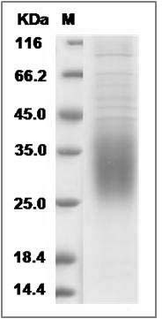 Rat CD47 (His Tag) recombinant protein