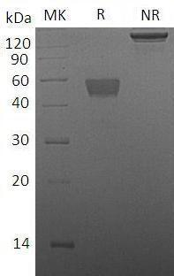 Mouse TIGIT (Fc tag) recombinant protein