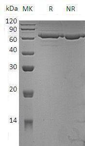 Mouse Pm20d1 (His tag) recombinant protein