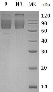 Human SCARB2/CD36L2/LIMP2/LIMPII (His tag) recombinant protein