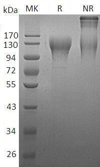 Human CD96 (His tag) recombinant protein