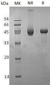 Human PPM1A/PPPM1A (His tag) recombinant protein