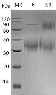 Human CD47/MER6 (His tag) recombinant protein