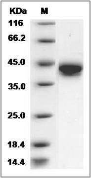 Rat CD38 (His Tag) recombinant protein