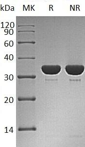 Human PTPN6/HCP/PTP1C (His tag) recombinant protein