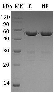 Human UBE2S/E2EPF/OK/SW-cl.73 (GST tag) recombinant protein