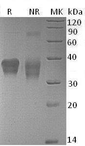 Mouse Crlf2/Crlm2/Tpte2/Tslpr (His tag) recombinant protein