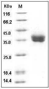 Human PD-L1/B7-H1/CD274 (His Tag) recombinant protein